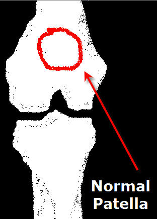 patella normal